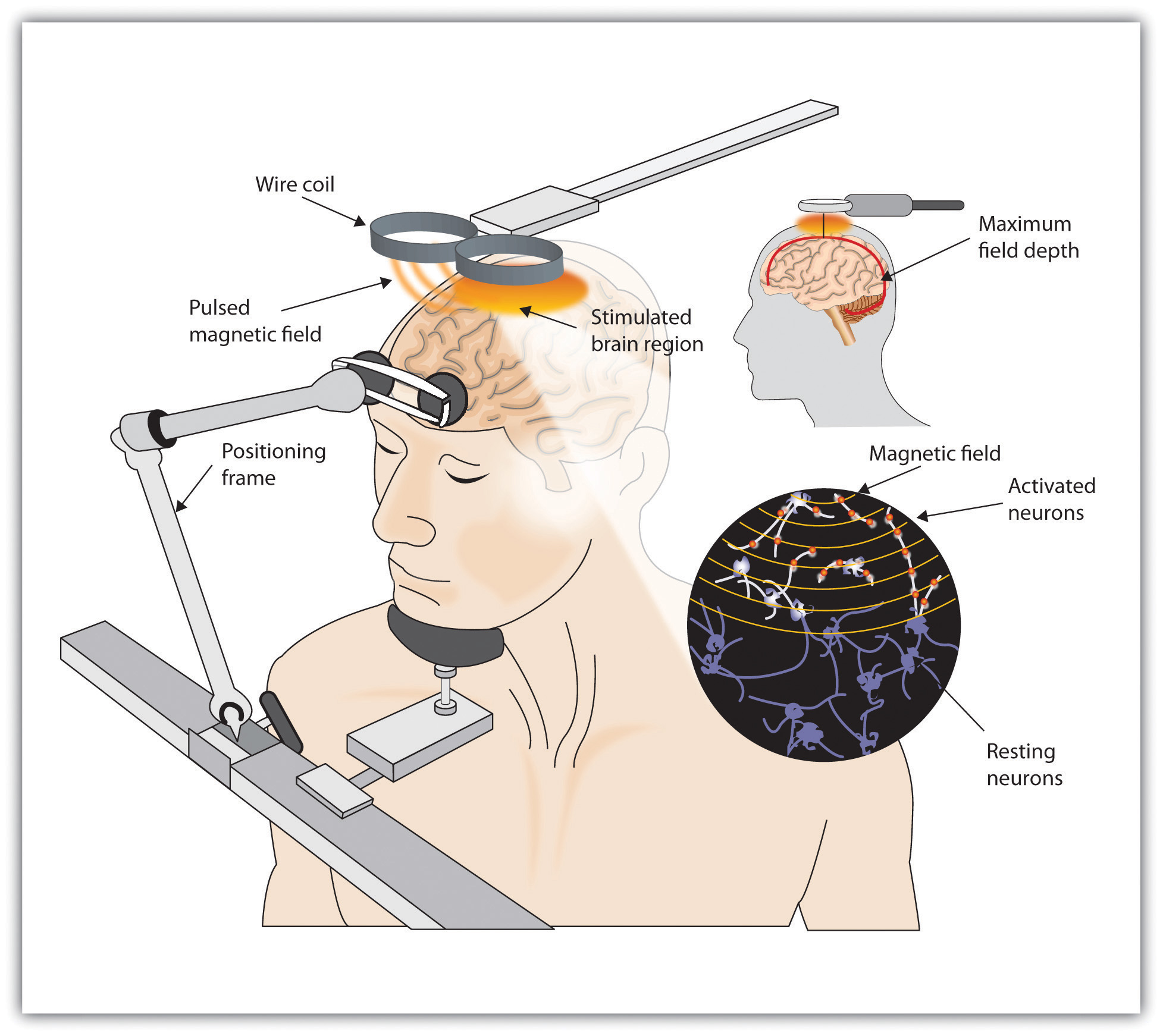 transcranial magnetic stimulation tms for depression Repetitive transcranial magnetic stimulation (rtms) therapy delivers pulses of an mri-strength magnetic field from a coil placed over the scalp.